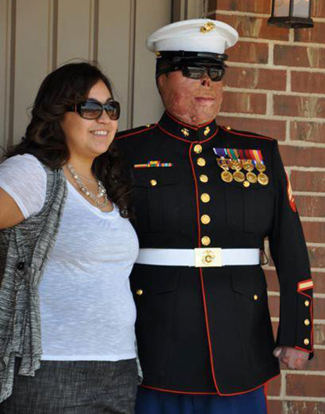 Marine Burn Victim Marriage