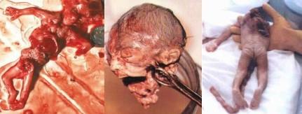 abortion(3)